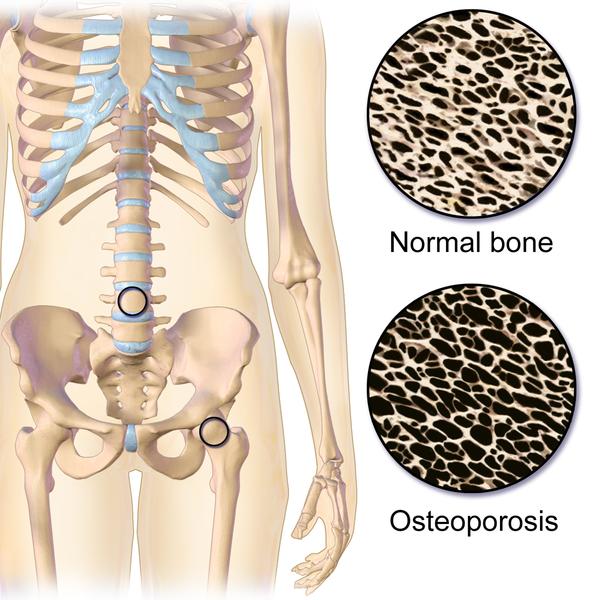 Main Difference - Bone Mass and Bone Density