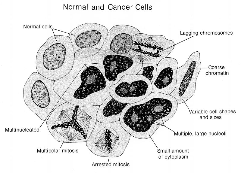 Main Difference - Cancer Cells and Normal Cells