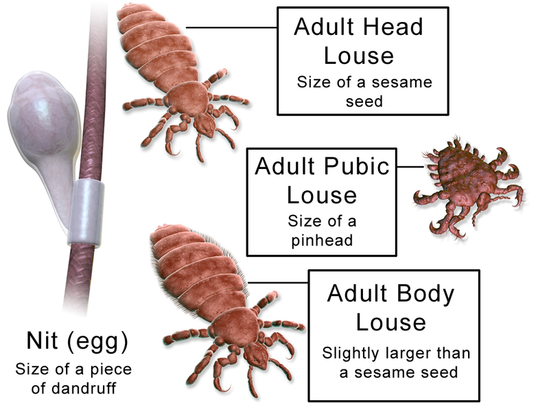 Difference Between Lice and Fleas
