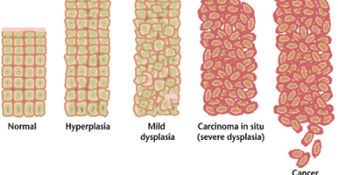 Difference Between Metaplasia and Dysplasia