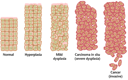 Difference Between Metaplasia and Dysplasia_Figure 2
