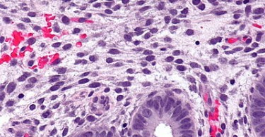 Difference Between Endometrium and Myometrium