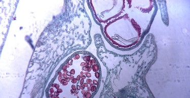 Difference Between Microspore and Pollen Grain