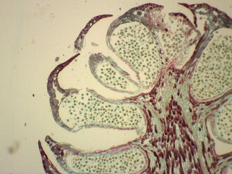 What is the Difference Between Male and Female Gametophyte
