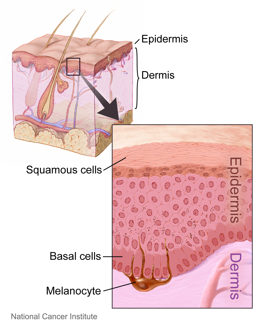 what is the difference between basal cell and squamous cell - pediaa