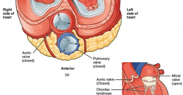 What is the Difference Between Mitral Valve and Aortic Valve