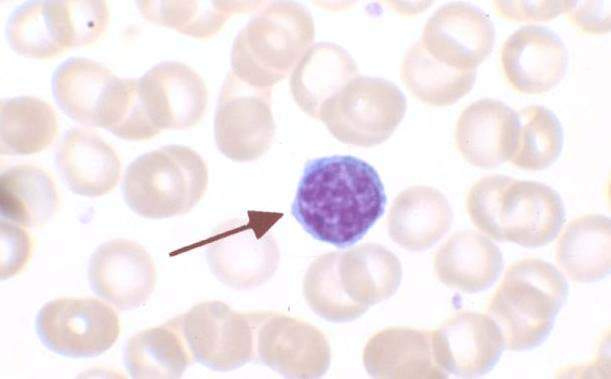 Main Difference - Monocytes and Lymphocytes