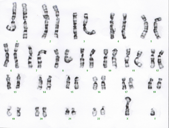 What is the Difference Between Maternal and Paternal Chromosomes_Figure 1