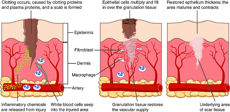 What is the Difference Between Granulation Tissue and Granuloma