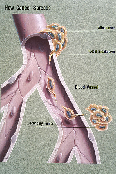 Difference Between Invasion and Metastasis