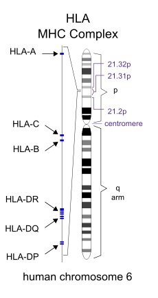 What is the Difference Between HLA and MHC