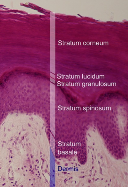 What is the Difference Between Epidermis and Epithelium