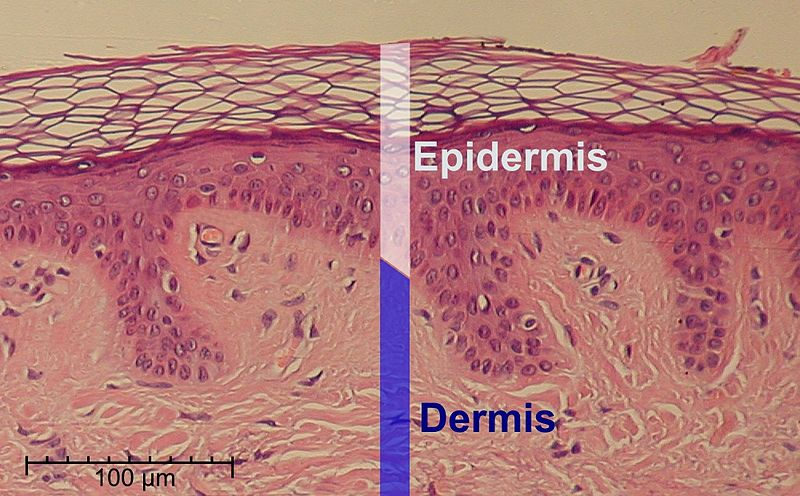 Difference Between Epidermis and Hypodermis