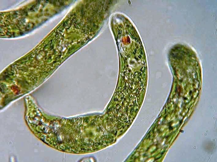 Main Difference - Amoeba and Euglena
