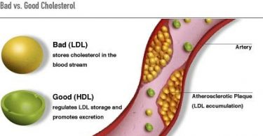Difference Between Lipids and Cholesterol