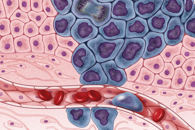 Difference Between Hematology and Oncology