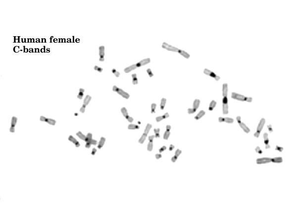 Constitutive vs Facultative Heterochromatin