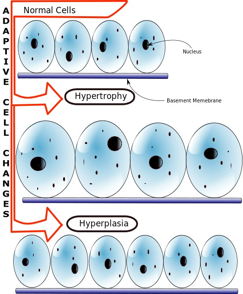 Difference Between Hyperplasia and Neoplasia