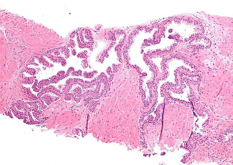 Hyperplasia vs Neoplasia