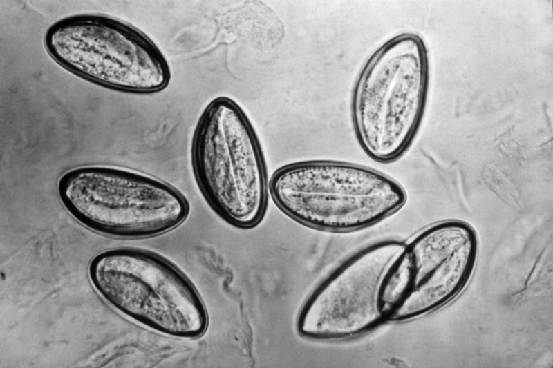 Pinworms vs Threadworms