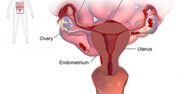 What is the Difference Between Endometriosis and Adenomyosis