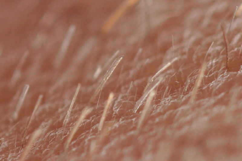 Main Difference - Vellus vs Terminal Hair