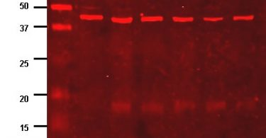 What is the Difference Between Immunoblot and Western Blot