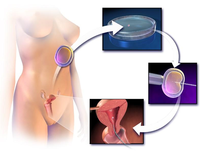Main Difference - Artificial Insemination vs in vitro Fertilization