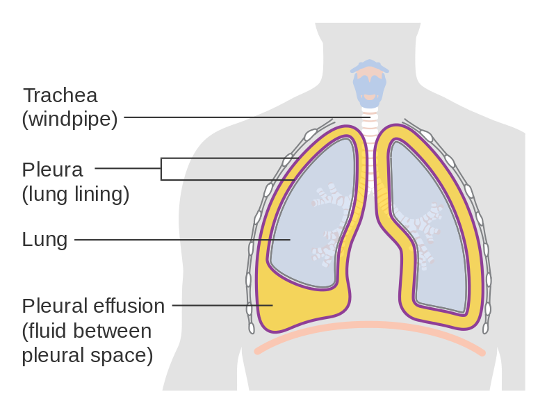 What is the Difference Between Transudate and Exudate Pleural Effusion