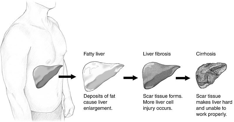 What is the Difference Between NASH and NAFLD