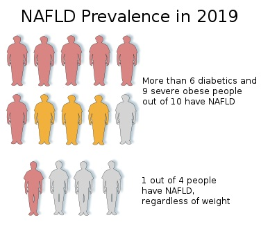 Main Difference - NASH vs NAFLD