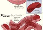 Main Difference - Normal Hemoglobin and Sickle Cell Hemoglobin