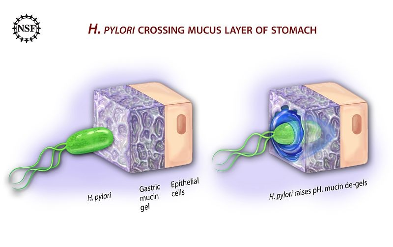What is the Difference Between H. Pylori IGG and IGA